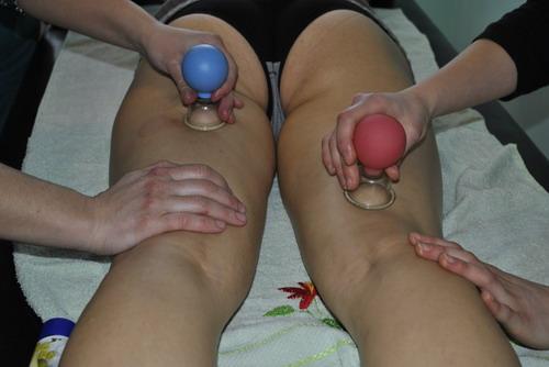 Антицелюлітній масаж